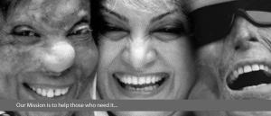 credits: Smile Again Foundation - depilex
